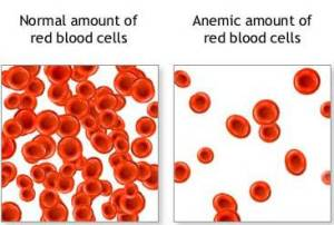 Iron Blood Cells