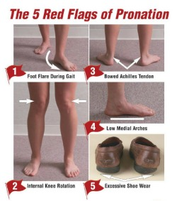 Running Shoes For Bunions And Overpronation